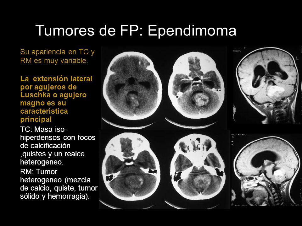 Tumores de FP: Ependimoma Su apariencia en TC y RM es muy variable. La extensión lateral por agujeros de Luschka o agujero magno es su característica