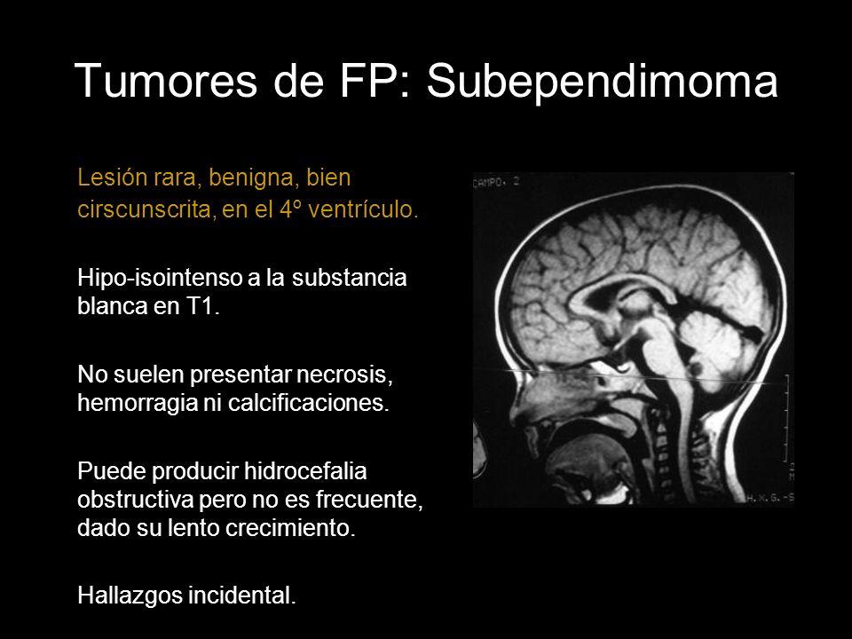 Tumores de FP: Subependimoma Lesión rara, benigna, bien cirscunscrita, en el 4º ventrículo. Hipo-isointenso a la substancia blanca en T1. No suelen pr