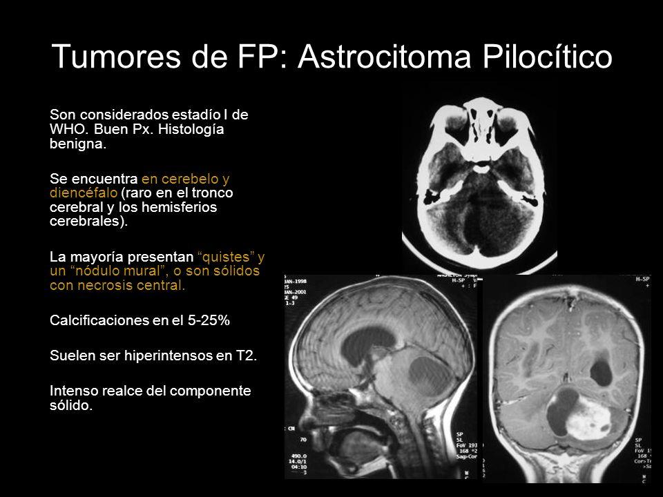 Tumores de FP: Astrocitoma Pilocítico Son considerados estadío I de WHO. Buen Px. Histología benigna. Se encuentra en cerebelo y diencéfalo (raro en e