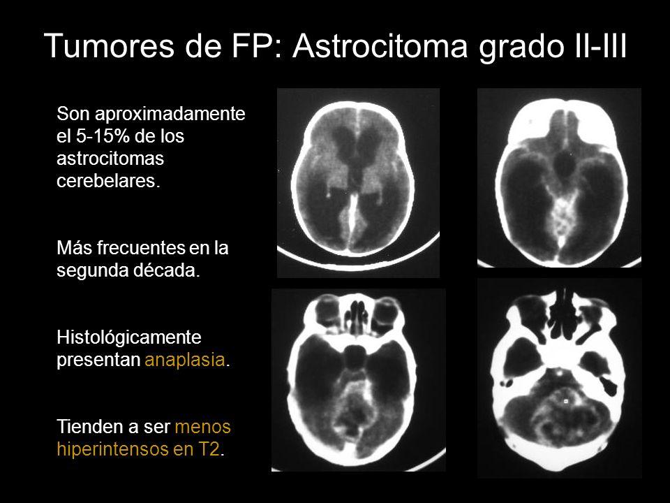 Tumores de FP: Astrocitoma grado II-III Son aproximadamente el 5-15% de los astrocitomas cerebelares. Más frecuentes en la segunda década. Histológica