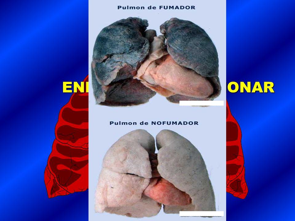 1.TABAQUISMO ES LA PRIMERA CAUSA DE CANCER. 2.