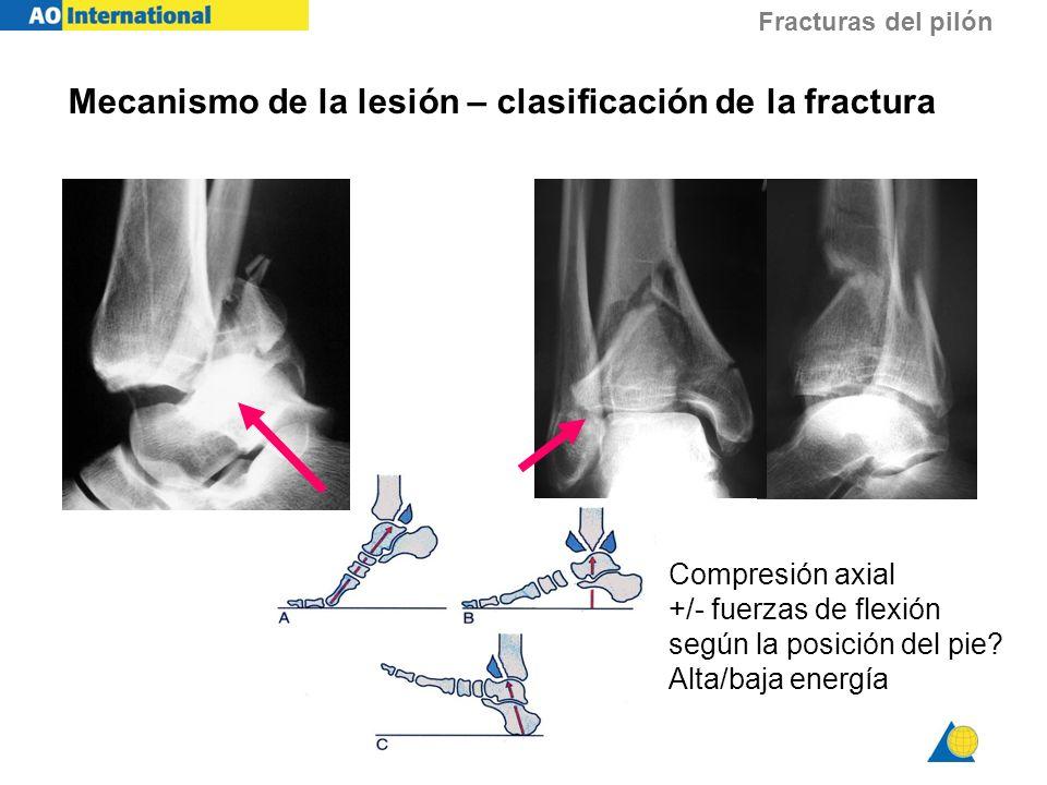 Fracturas del pilón Mecanismo de la lesión – clasificación de la fractura Compresión axial +/- fuerzas de flexión según la posición del pie? Alta/baja