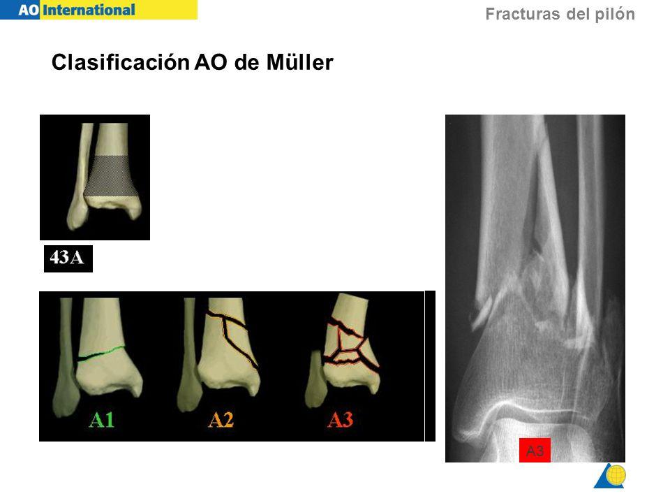 Fracturas del pilón Clasificación AO de Müller A3