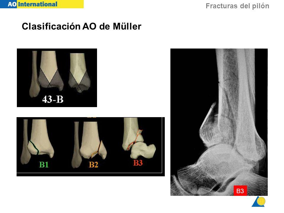 Fracturas del pilón B3 Clasificación AO de Müller