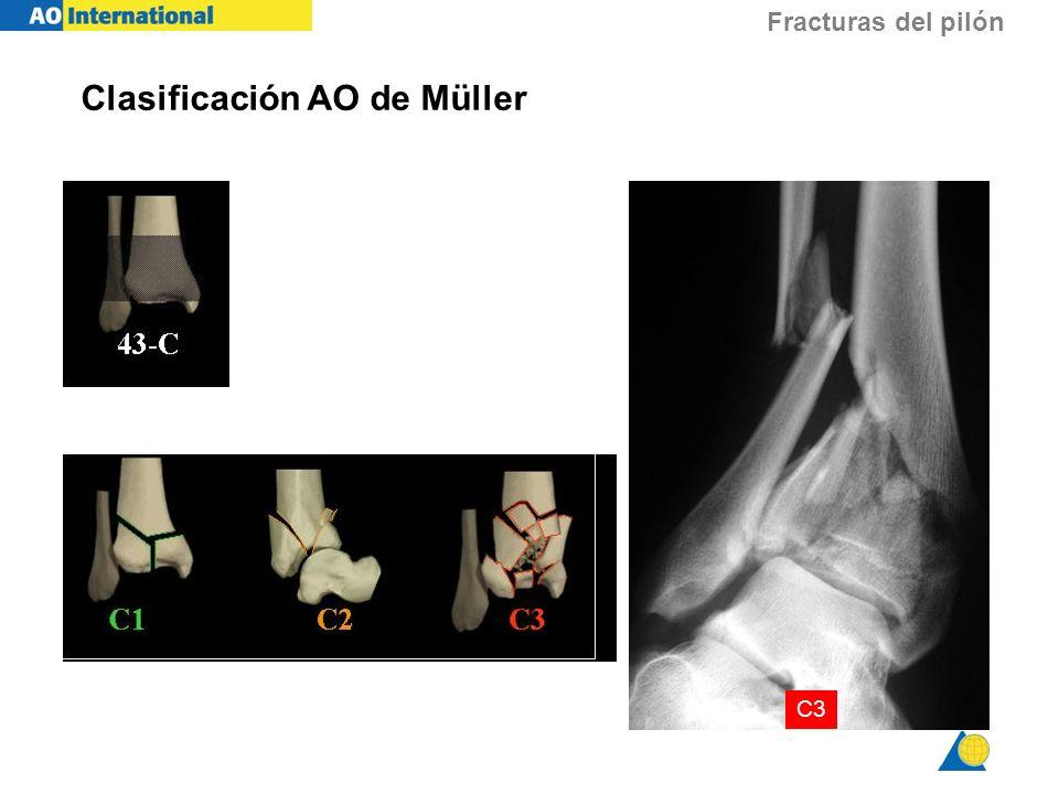 Fracturas del pilón C3 Clasificación AO de Müller