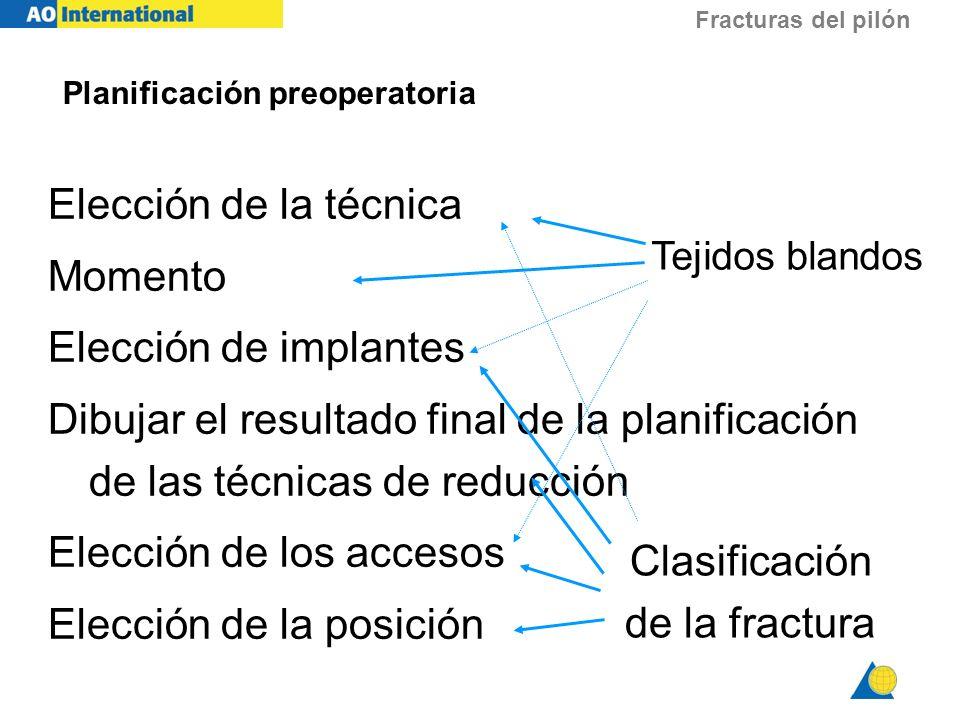 Fracturas del pilón Planificación preoperatoria Elección de la técnica Momento Elección de implantes Dibujar el resultado final de la planificación de