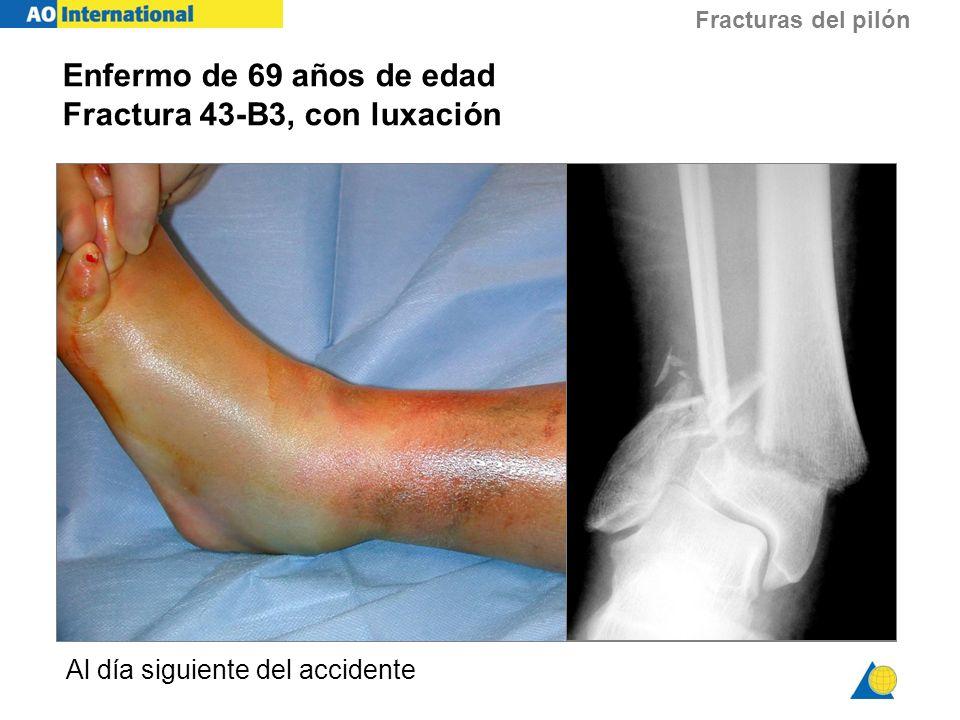 Fracturas del pilón Enfermo de 69 años de edad Fractura 43-B3, con luxación Al día siguiente del accidente