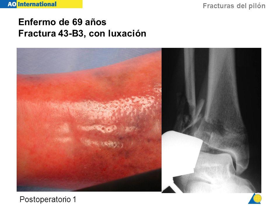 Fracturas del pilón Postoperatorio 1 Enfermo de 69 años Fractura 43-B3, con luxación