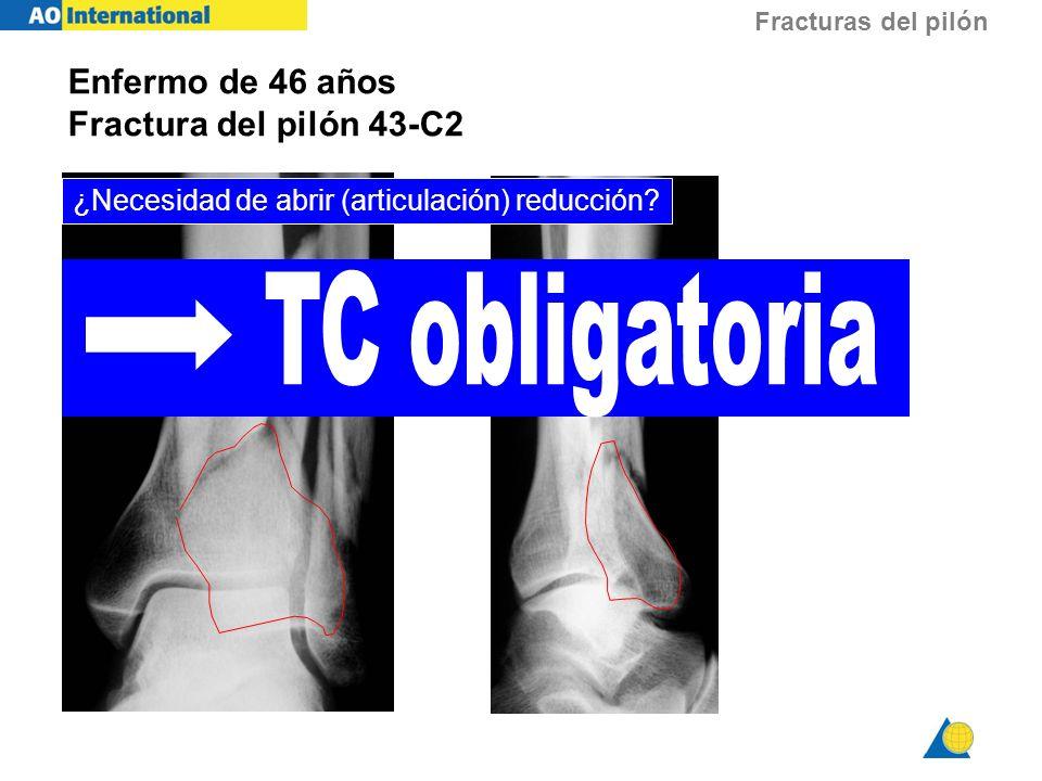 Fracturas del pilón Enfermo de 46 años Fractura del pilón 43-C2 ¿Necesidad de abrir (articulación) reducción?