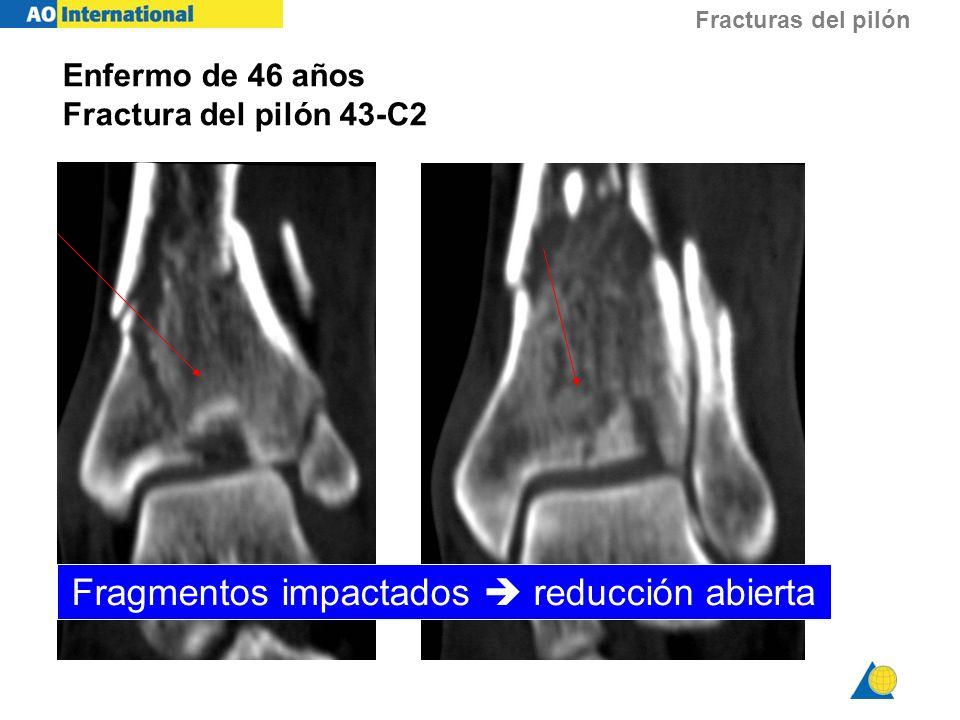Fracturas del pilón Fragmentos impactados reducción abierta Enfermo de 46 años Fractura del pilón 43-C2