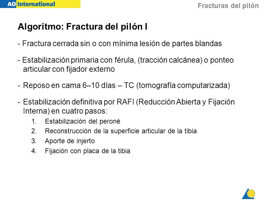 Fracturas del pilón Algoritmo: Fractura del pilón I - Fractura cerrada sin o con mínima lesión de partes blandas - Estabilización primaria con férula,
