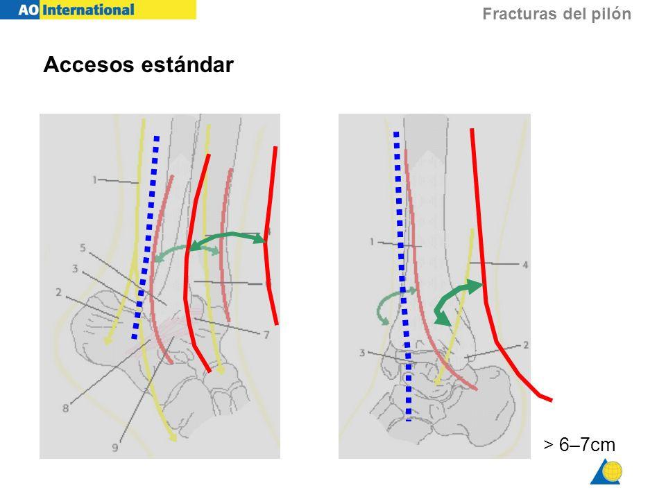 Fracturas del pilón Accesos estándar > 6–7cm
