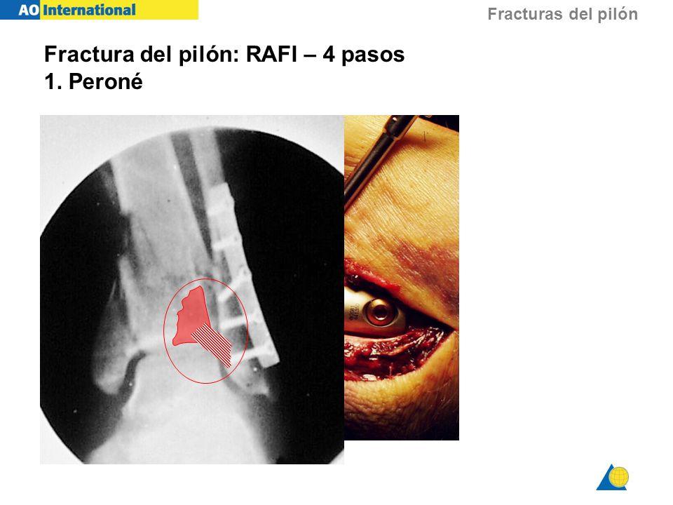 Fracturas del pilón Fractura del pilón: RAFI – 4 pasos 1. Peroné