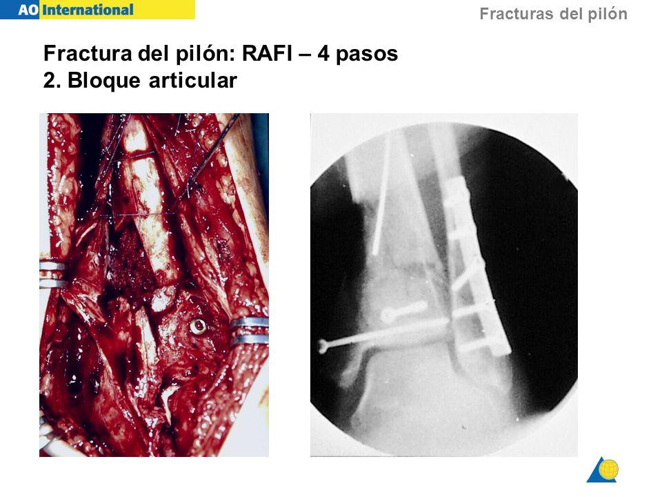Fracturas del pilón Fractura del pilón: RAFI – 4 pasos 2. Bloque articular