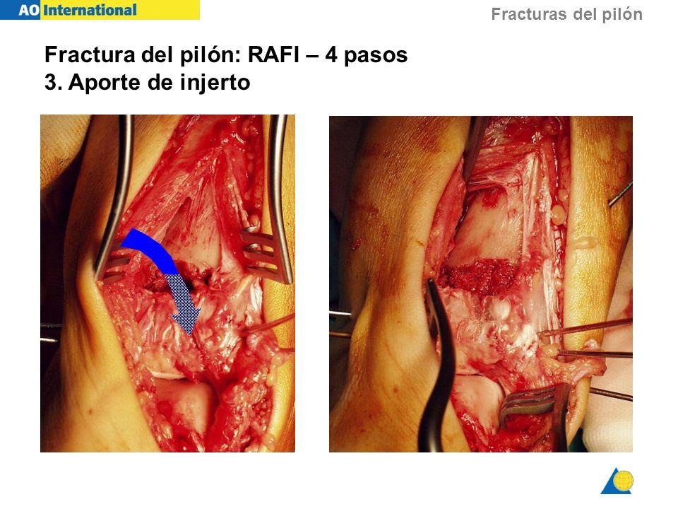 Fracturas del pilón Fractura del pilón: RAFI – 4 pasos 3. Aporte de injerto