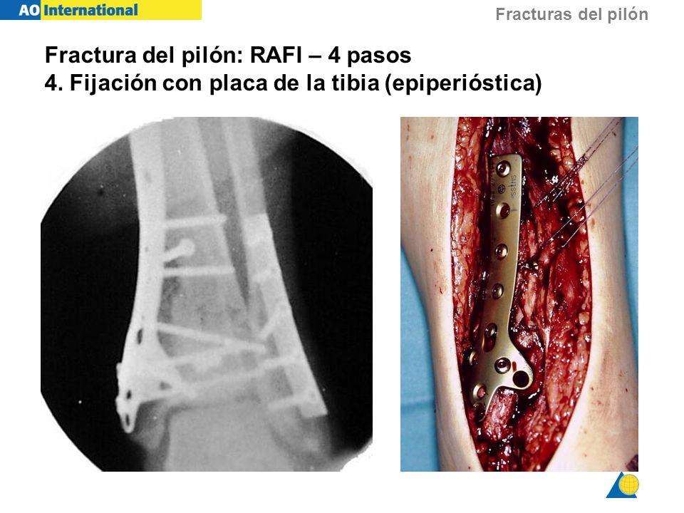Fracturas del pilón Fractura del pilón: RAFI – 4 pasos 4. Fijación con placa de la tibia (epiperióstica)