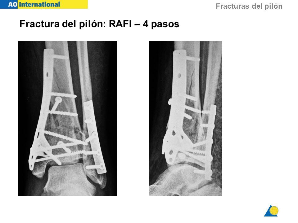 Fracturas del pilón Fractura del pilón: RAFI – 4 pasos