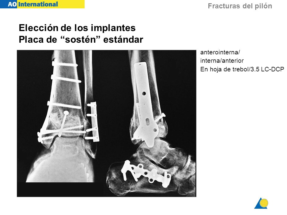 Fracturas del pilón Elección de los implantes Placa de sostén estándar anterointerna/ interna/anterior En hoja de trebol/3.5 LC-DCP