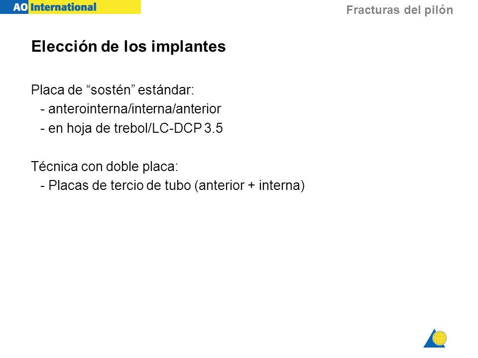 Fracturas del pilón Elección de los implantes Placa de sostén estándar: - anterointerna/interna/anterior - en hoja de trebol/LC-DCP 3.5 Técnica con do