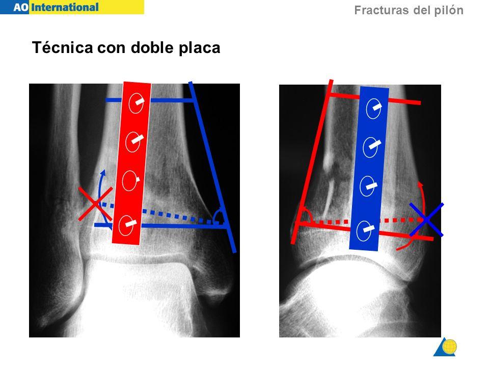 Fracturas del pilón Técnica con doble placa