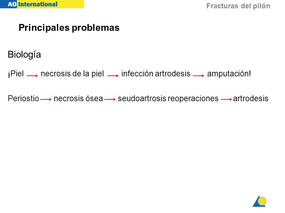 Principales problemas Biología ¡Piel necrosis de la piel infección artrodesis amputación! Periostio necrosis ósea seudoartrosis reoperaciones artrodes