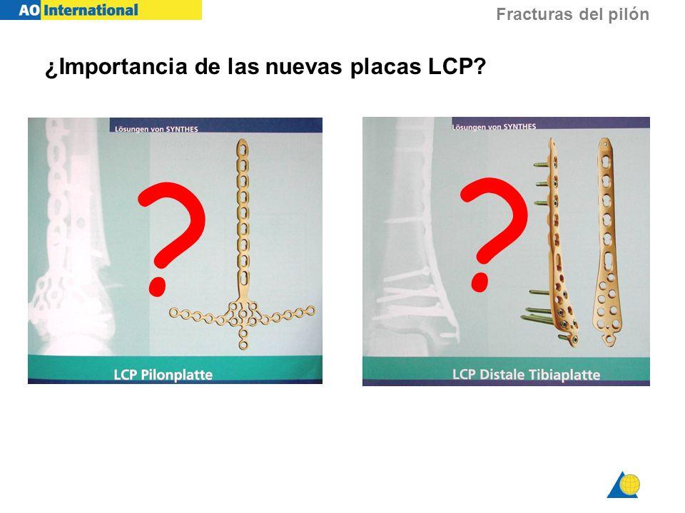 Fracturas del pilón ¿Importancia de las nuevas placas LCP? ? ?