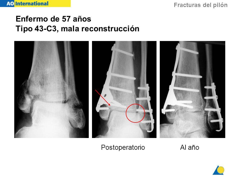 Fracturas del pilón Enfermo de 57 años Tipo 43-C3, mala reconstrucción Al añoPostoperatorio