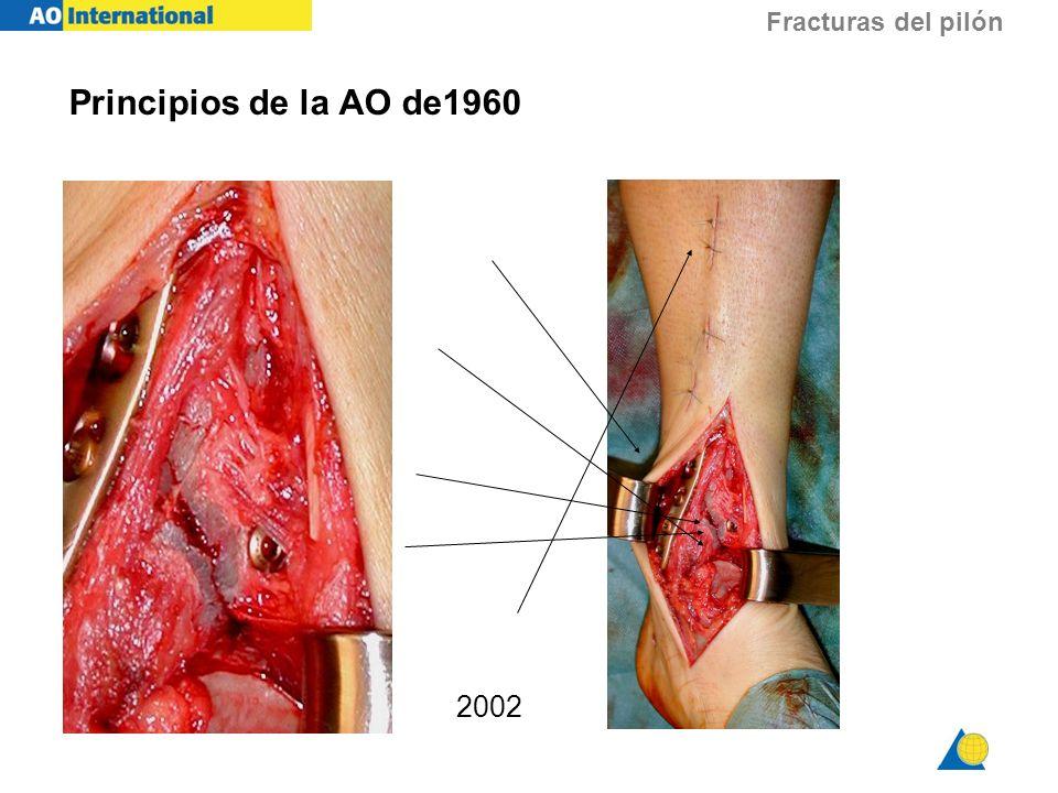 Fracturas del pilón 2002 Principios de la AO de1960