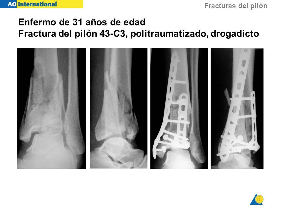 Fracturas del pilón Enfermo de 31 años de edad Fractura del pilón 43-C3, politraumatizado, drogadicto