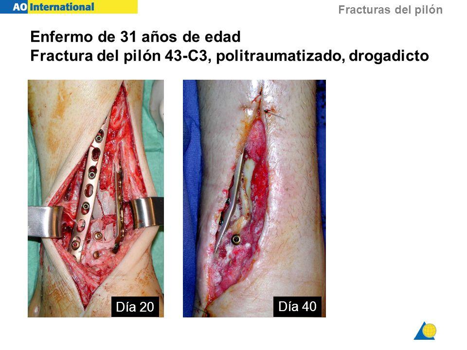 Fracturas del pilón Día 20 Día 40 Enfermo de 31 años de edad Fractura del pilón 43-C3, politraumatizado, drogadicto