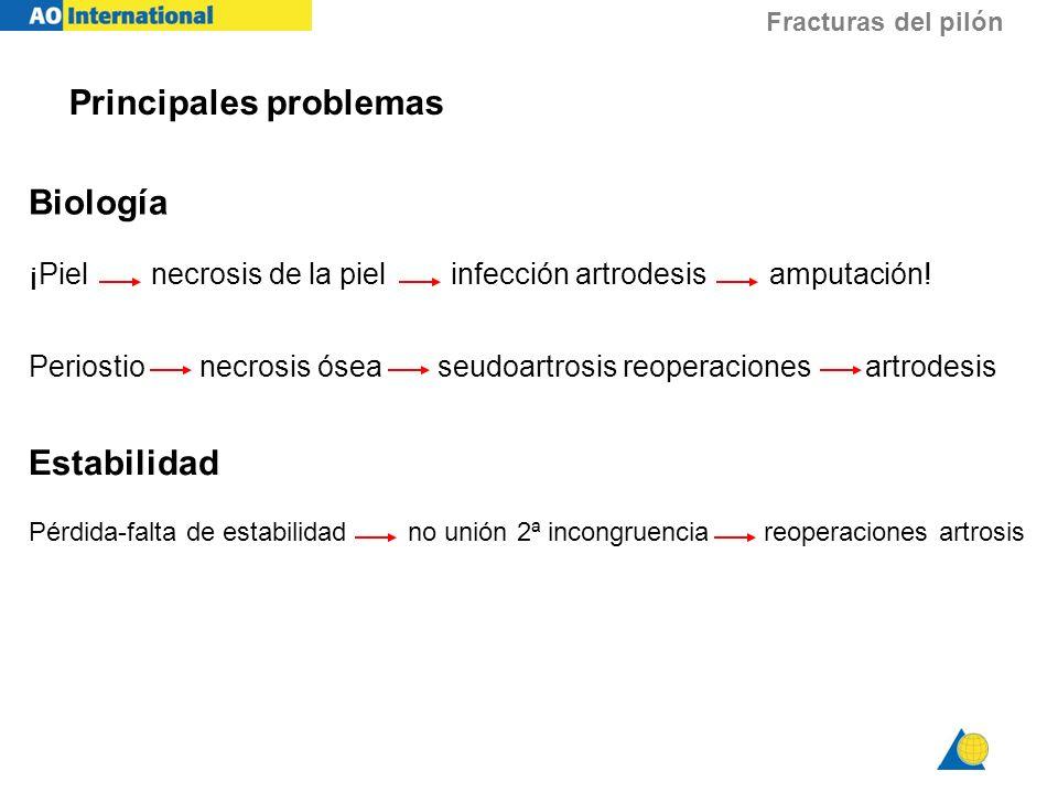 Fracturas del pilón Principales problemas Biología ¡Piel necrosis de la piel infección artrodesis amputación! Periostio necrosis ósea seudoartrosis re