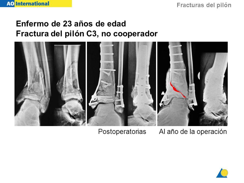 Fracturas del pilón Enfermo de 23 años de edad Fractura del pilón C3, no cooperador PostoperatoriasAl año de la operación