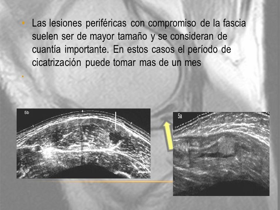 Las lesiones periféricas con compromiso de la fascia suelen ser de mayor tamaño y se consideran de cuantía importante. En estos casos el período de ci