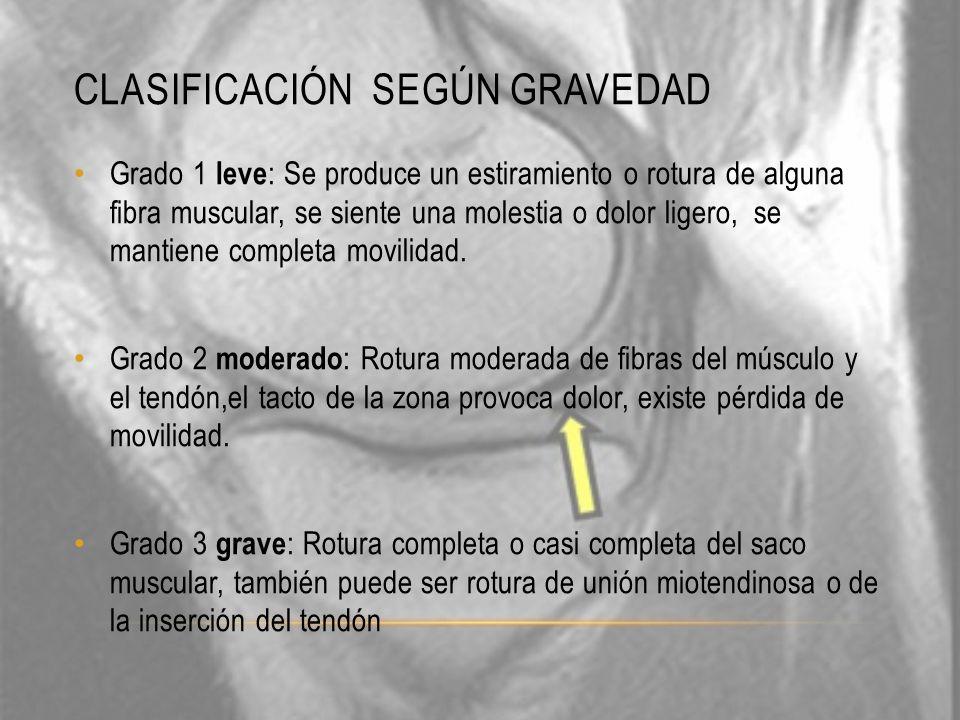 CLASIFICACIÓN SEGÚN GRAVEDAD Grado 1 leve : Se produce un estiramiento o rotura de alguna fibra muscular, se siente una molestia o dolor ligero, se ma