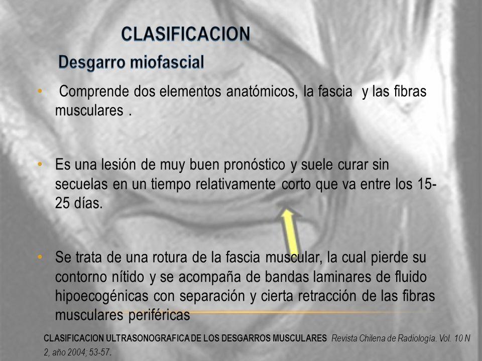 CLASIFICACION ULTRASONOGRAFICA DE LOS DESGARROS MUSCULARES Revista Chilena de Radiología. Vol. 10 N 2, año 2004; 53-57.