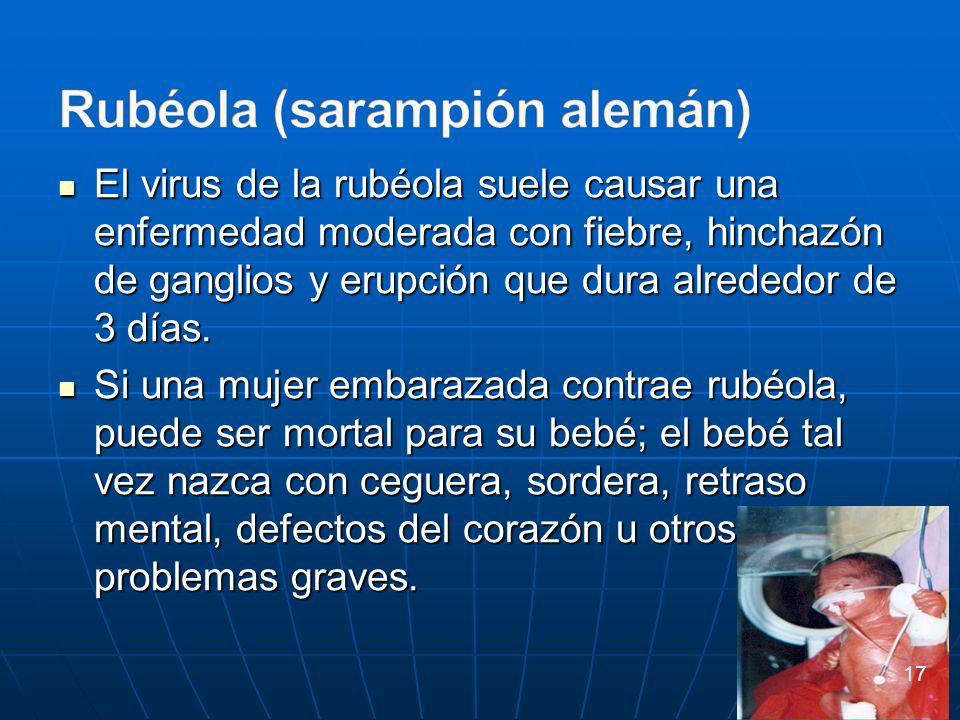 El virus de la rubéola suele causar una enfermedad moderada con fiebre, hinchazón de ganglios y erupción que dura alrededor de 3 días.