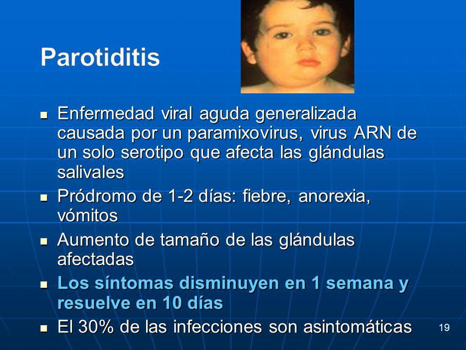 Enfermedad viral aguda generalizada causada por un paramixovirus, virus ARN de un solo serotipo que afecta las glándulas salivales Enfermedad viral aguda generalizada causada por un paramixovirus, virus ARN de un solo serotipo que afecta las glándulas salivales Pródromo de 1-2 días: fiebre, anorexia, vómitos Pródromo de 1-2 días: fiebre, anorexia, vómitos Aumento de tamaño de las glándulas afectadas Aumento de tamaño de las glándulas afectadas Los síntomas disminuyen en 1 semana y resuelve en 10 días Los síntomas disminuyen en 1 semana y resuelve en 10 días El 30% de las infecciones son asintomáticas El 30% de las infecciones son asintomáticas 19