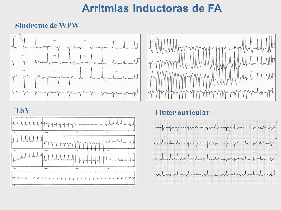 Arritmias inductoras de FA Síndrome de WPW TSV Fluter auricular