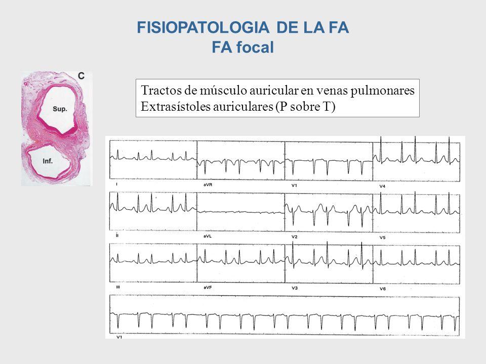 FISIOPATOLOGIA DE LA FA FA focal Tractos de músculo auricular en venas pulmonares Extrasístoles auriculares (P sobre T)