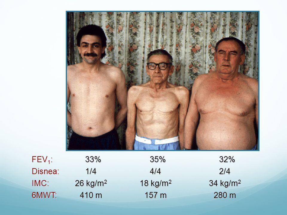 FEV 1 : 33%35%32% Disnea:IMC: 6MWT:2/4 34 kg/m 2 280 m 4/4 18 kg/m 2 157 m 1/4 26 kg/m 2 410 m