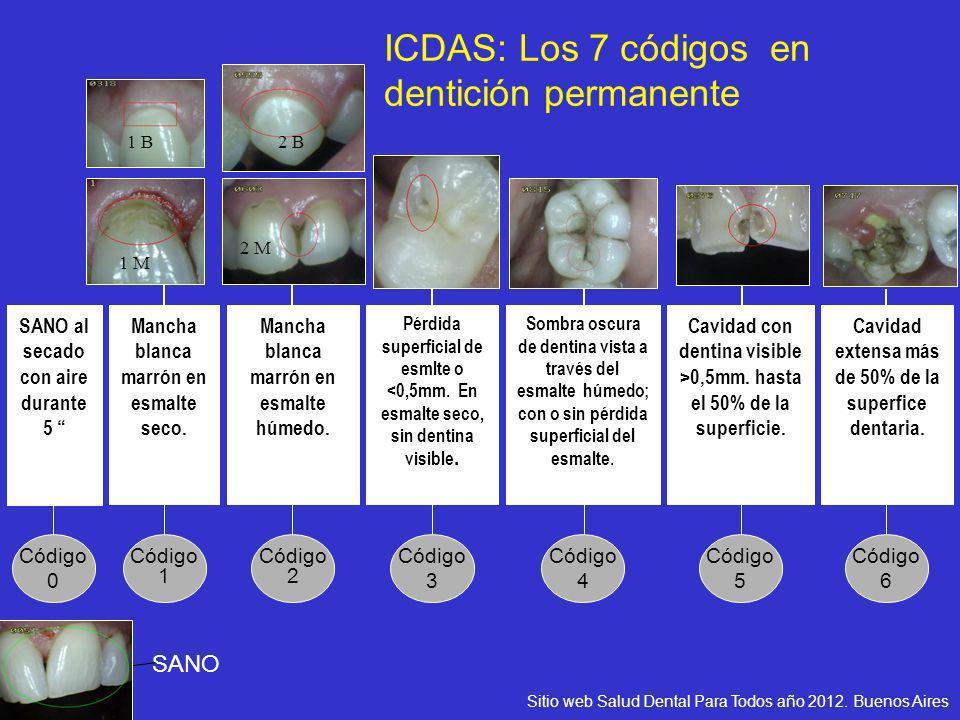 Código 6 Cavidad extensa más de 50% de la superfice dentaria. Código 5 Cavidad con dentina visible >0,5mm. hasta el 50% de la superficie. Código 4 Som