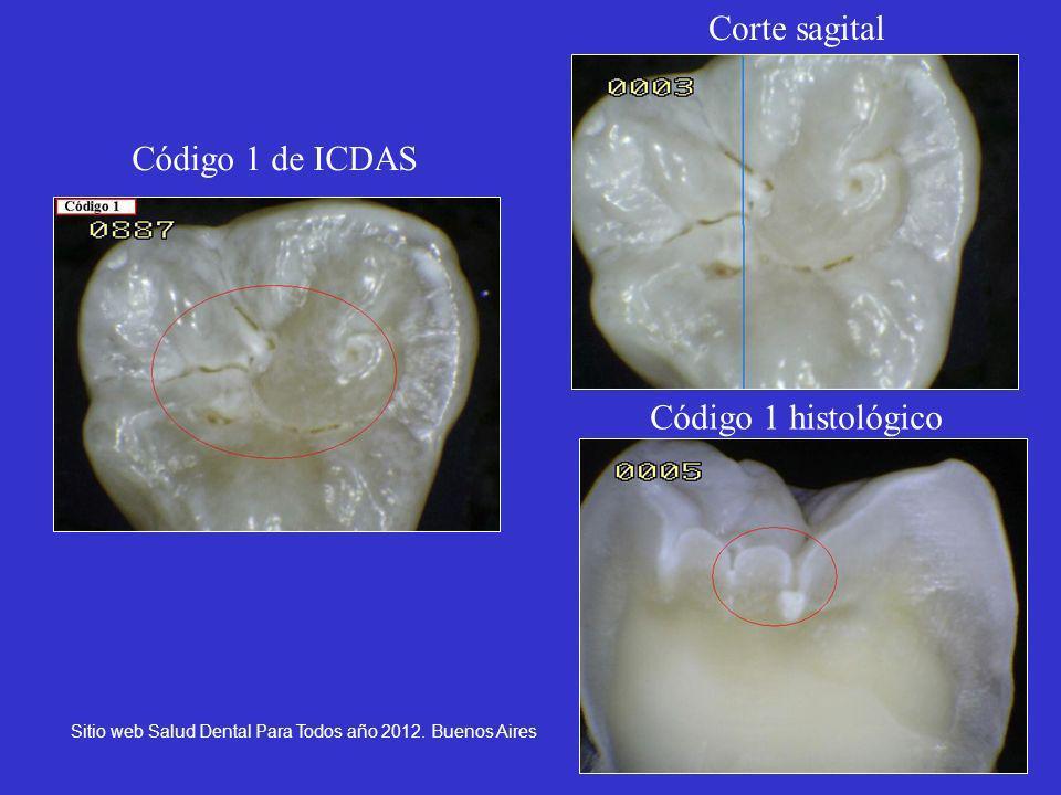 18 Código 1 de ICDAS Corte sagital Código 1 histológico Sitio web Salud Dental Para Todos año 2012. Buenos Aires