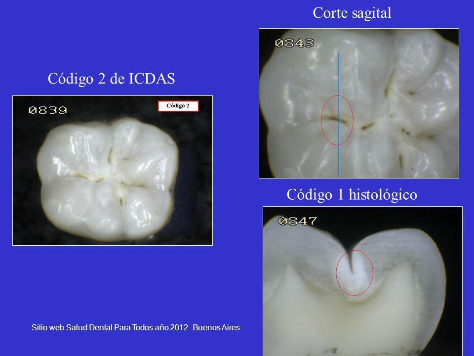 19 Código 2 de ICDAS Corte sagital Código 1 histológico Sitio web Salud Dental Para Todos año 2012. Buenos Aires