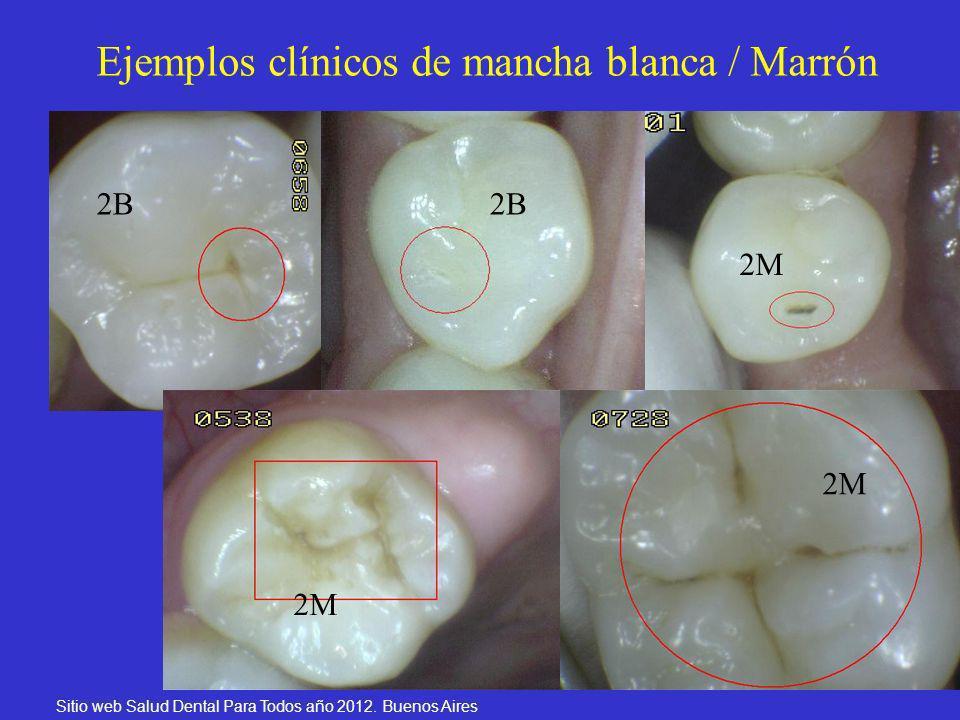 25 Ejemplos clínicos de mancha blanca / Marrón Sitio web Salud Dental Para Todos año 2012. Buenos Aires 2B 2M