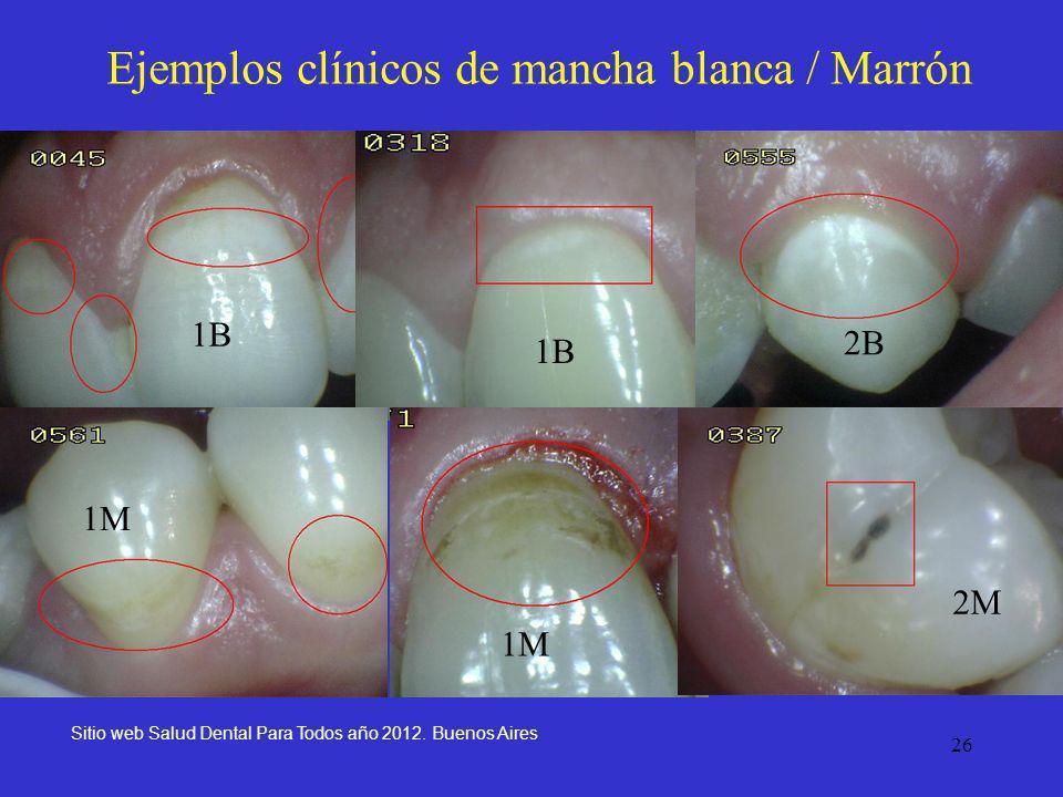 26 Ejemplos clínicos de mancha blanca / Marrón Sitio web Salud Dental Para Todos año 2012. Buenos Aires 1B 1M 1B 2M 2B