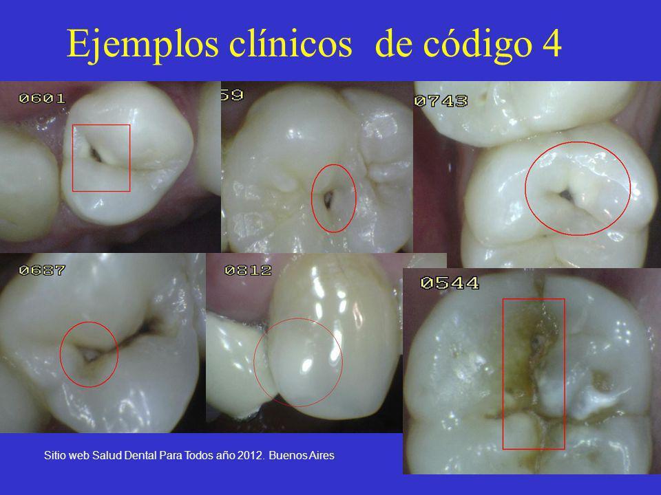 28 Ejemplos clínicos de código 4 Sitio web Salud Dental Para Todos año 2012. Buenos Aires