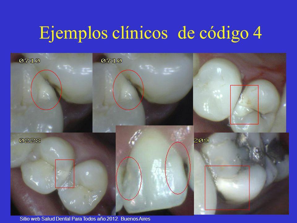 29 Ejemplos clínicos de código 4 Sitio web Salud Dental Para Todos año 2012. Buenos Aires