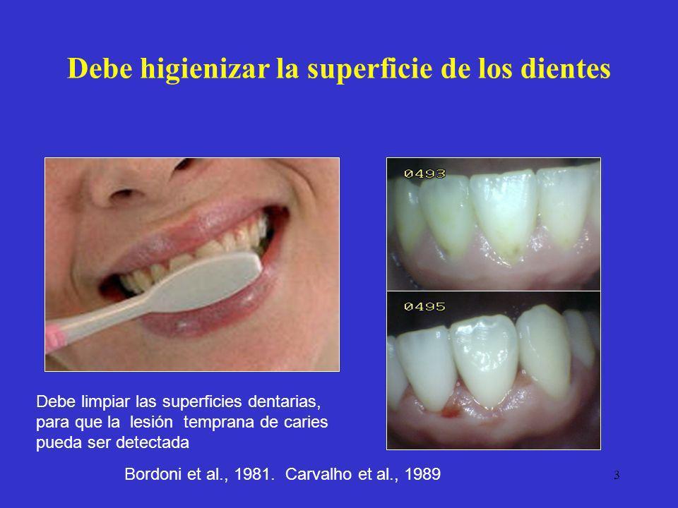 3 Debe higienizar la superficie de los dientes Debe limpiar las superficies dentarias, para que la lesión temprana de caries pueda ser detectada Bordo