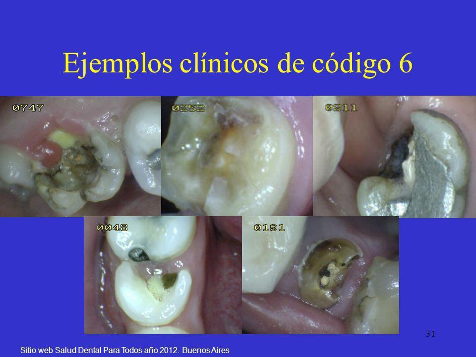 31 Ejemplos clínicos de código 6 Sitio web Salud Dental Para Todos año 2012. Buenos Aires