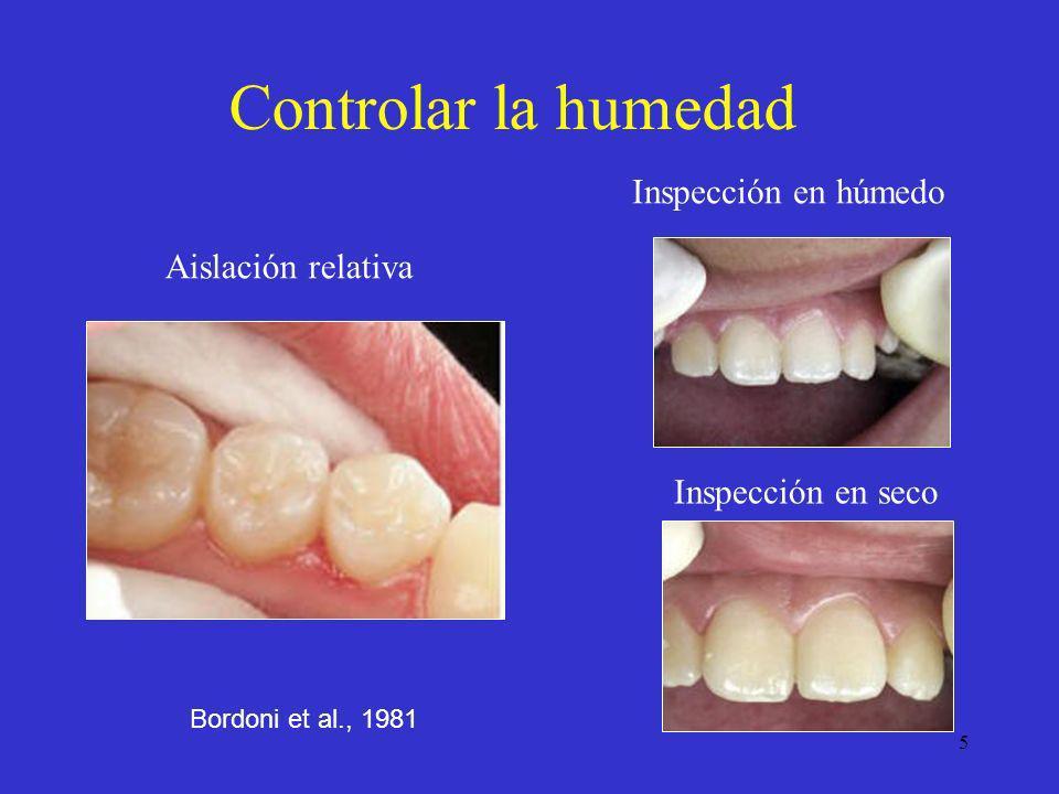 16 0= No hay esmalte desmineralizado o hay una zona estrecha de opacidad 1= Esmalte desmineralizado limitado al 50% de la capa exterior 2= La desmineralización involucra 50% de la capa interior del esmalte y al tercio exterior de la dentina 3= La desmineralización involucra al tercio medio de la dentina 4= La desmineralización involucra al tercio interno de la dentina Ekstrand et al., 1997